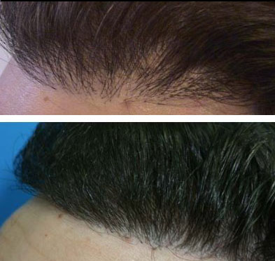hair transplant tunisia