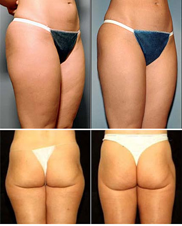 liposuction tunisia