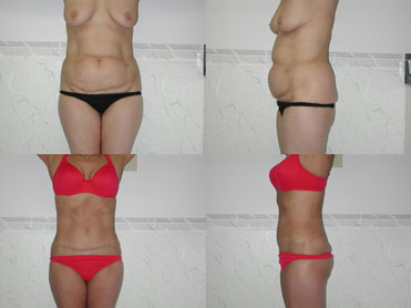 abdominoplasty tunisia,tummy tuck tunisia
